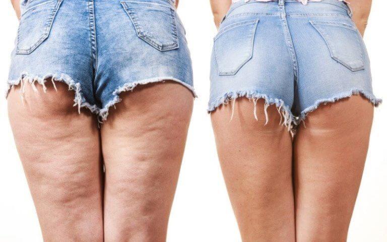 Pernas com e sem celulite