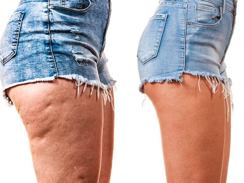 Pernas com e sem celulite - de lado